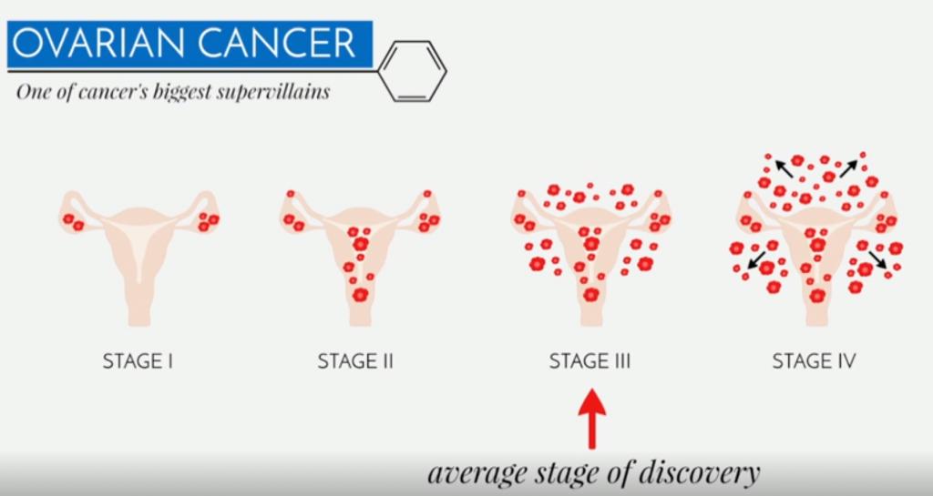 3 pav. Kiaušidžių vėžys